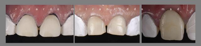 dental uses for plumber's tape figure 1