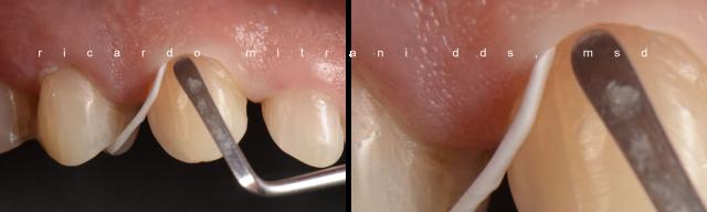 dental uses for plumber's tape figure 4