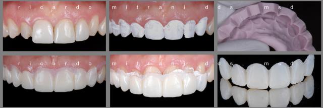 dental uses for plumber's tape figure 8