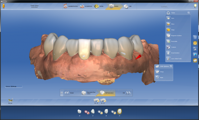 Digital dentistry Figure 1