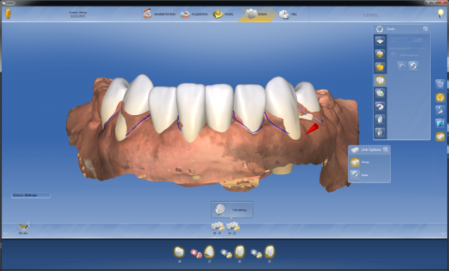 Digital dentistry Figure 3