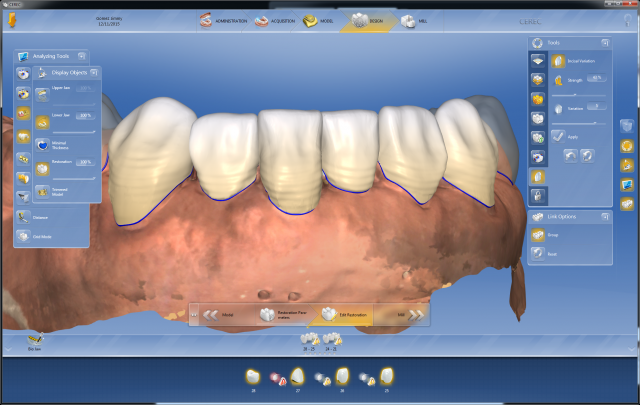 Digital dentistry Figure 5
