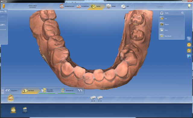 Digital dentistry Figure 7'