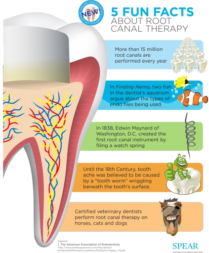 5 Fun Facts About Root Canals