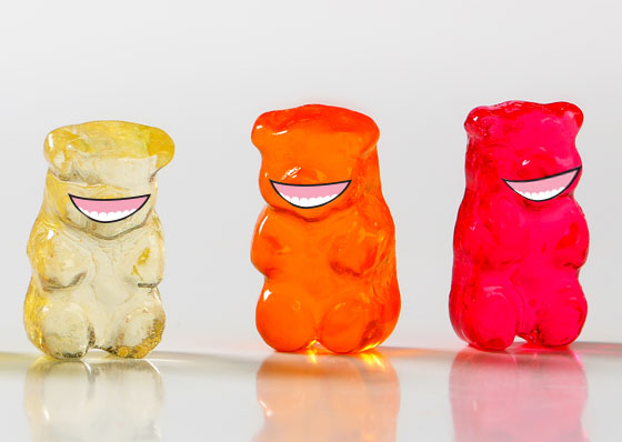 Gummy smiles with dental patients