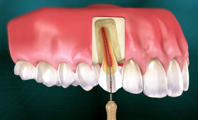 endodontics course