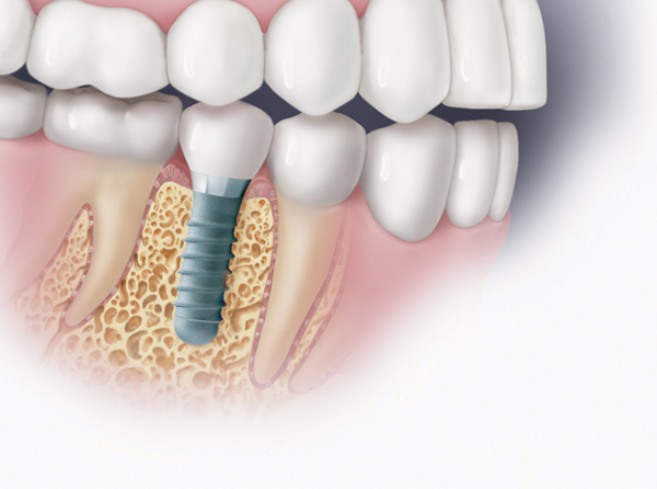 Dr. Steve Ratcliff discusses different types of implants.