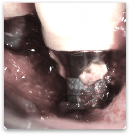 Reaction to retained cement