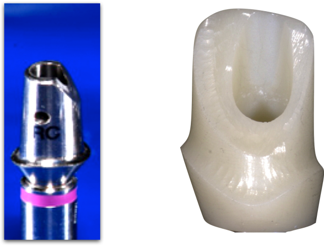 Screw retained vs cemented implant restorations