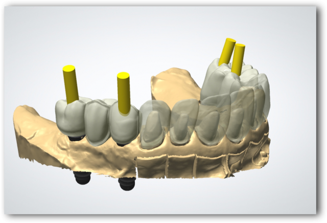 Dental implant position
