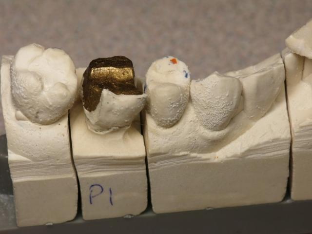 Dental impression problems image 003