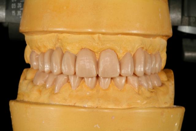 diagnostic wax-up figure 1