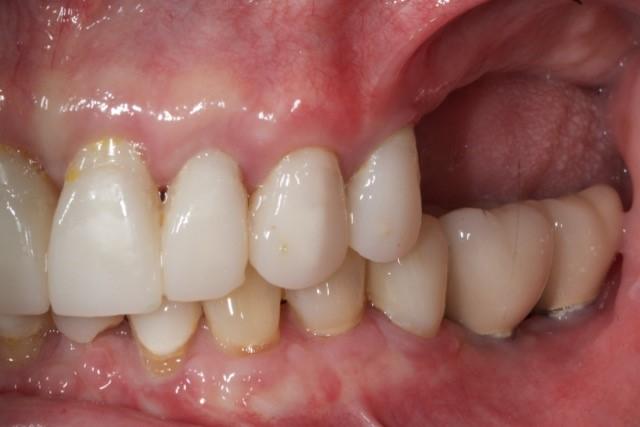 Planning dental implants