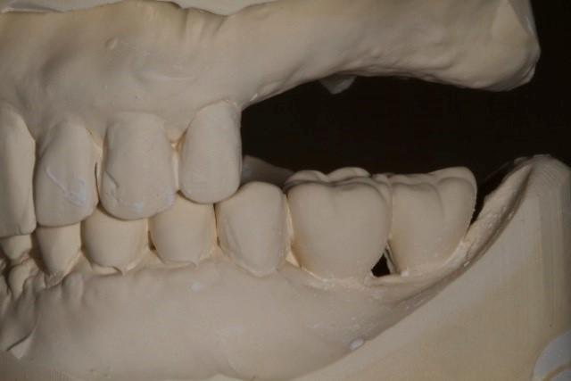 Dr. Steve Ratcliff discusses planning dental implants