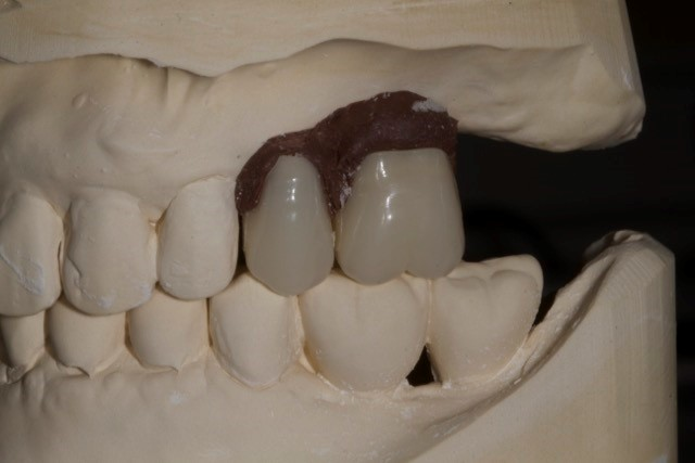 Who gets to decide where the dental implants go?
