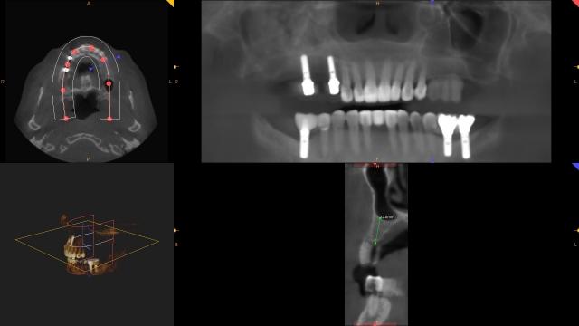 planning dental implant