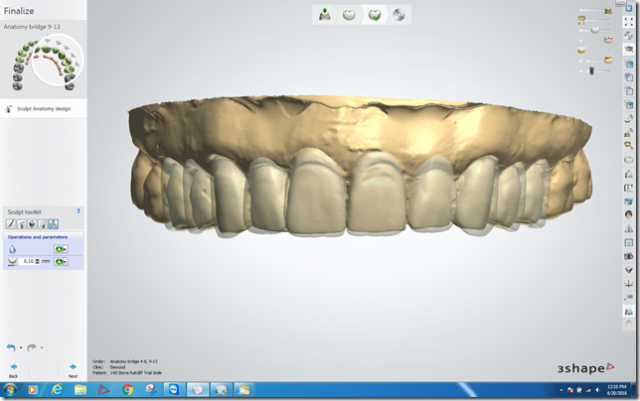 digital smile design figure 3