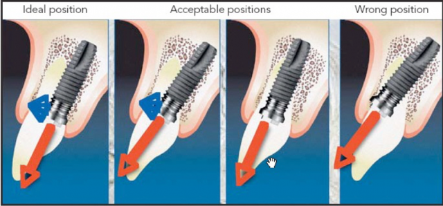 positioning screw retained implants