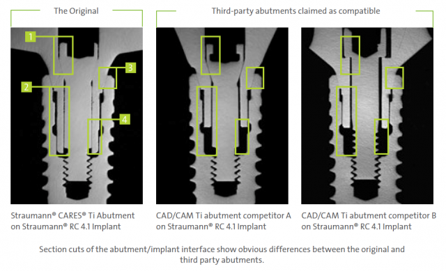 Implant abutments Figure 5