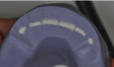better dental restorations figure 1