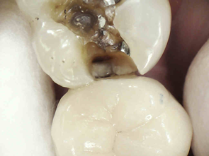 better dental restorations figure 11