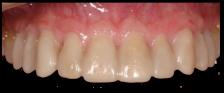 better dental restorations figure 2