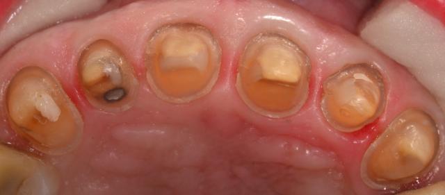 better dental restorations figure 4