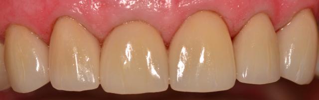 better dental restorations figure 6