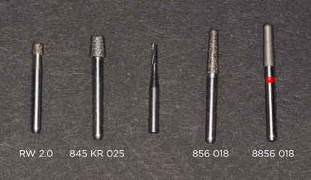 better dental restorations figure 8