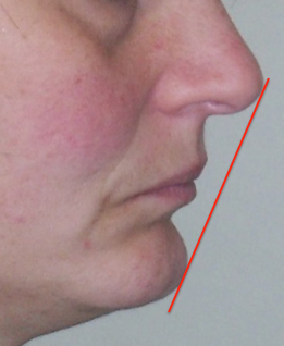 cephalometrics figure figure 4
