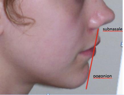 cephalometrics figure figure 5