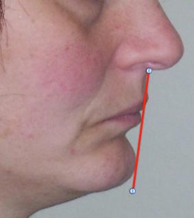 cephalometrics figure figure 6