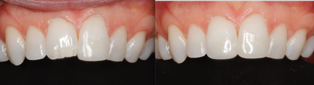 dental composite comparison figure 3