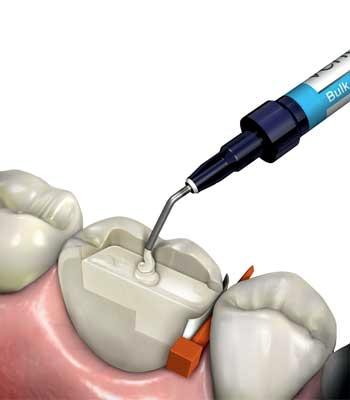 dental composites figure 1