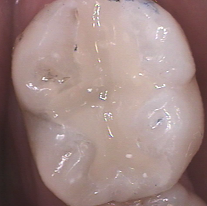 dental composites figure 2