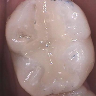 dental composites figure 2