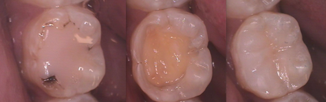 dental composites figure 3