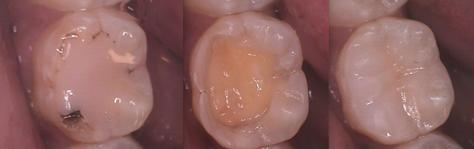 dental composites figure 3