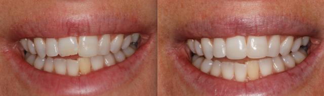dental composites figure 4