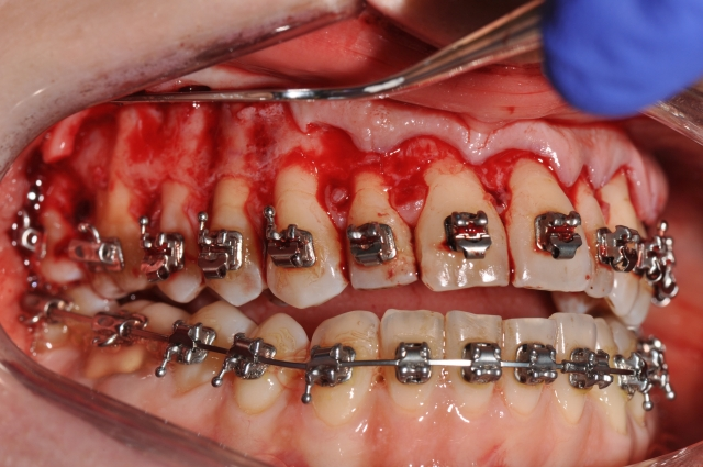 orthodontics figure 5