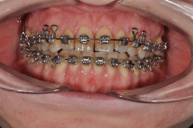 orthodontics figure 6