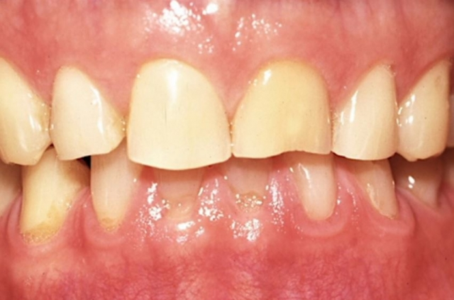 Common patterns of tooth wear