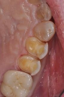 tissue retraction figure 2