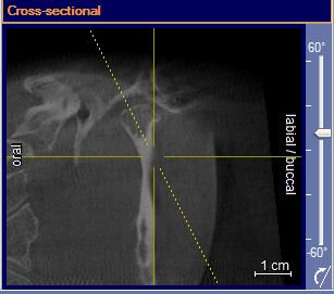 X-ray of the cross-sectional.