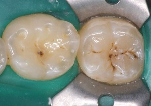 Two molars from the top