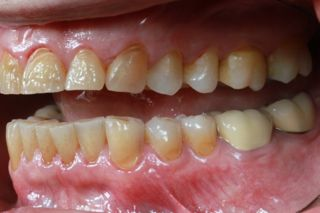 Why Are Dentists Afraid of Worn Dentition?