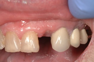 Top teeth with a missing lateral incisor.