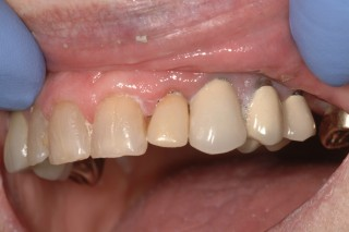 Top teeth with the bridge in place.