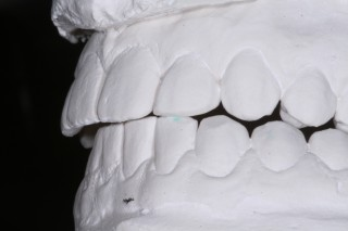 Molds of teeth from the side.