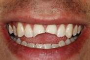Can Bonding Broken Tooth Fragments Really Work?